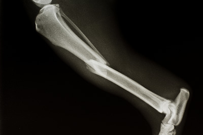 A fractured tibia